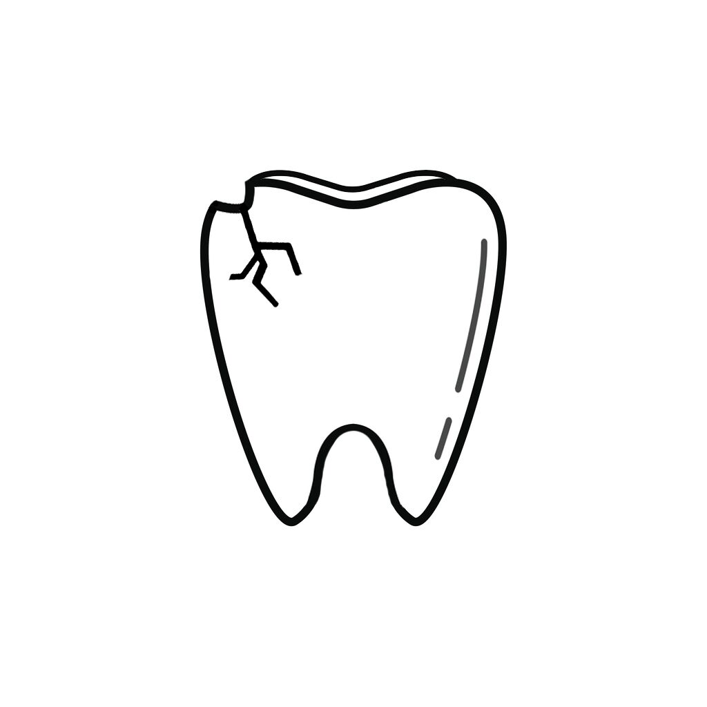 Osmond NE Dentist | I Chipped a Tooth! What Can I Do?